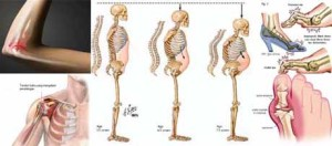 Cara Mengobati TBC Tulang Dengan Cepat Dan Aman